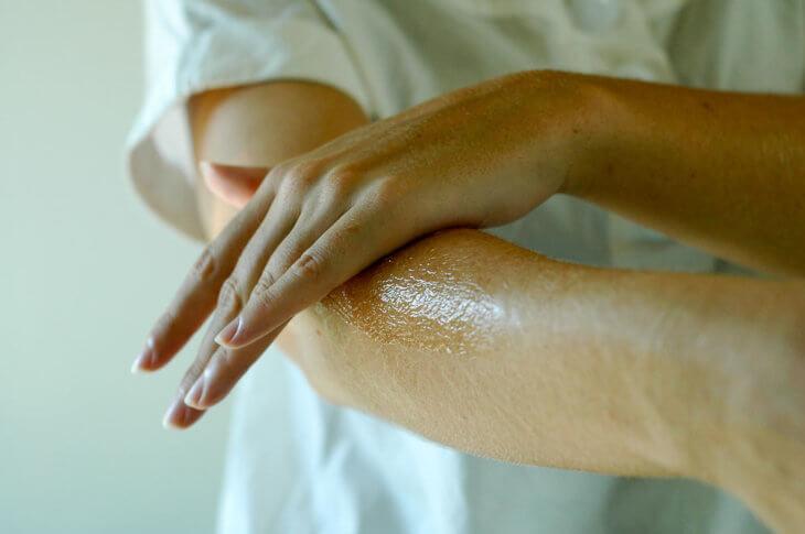 поврежденная кожа